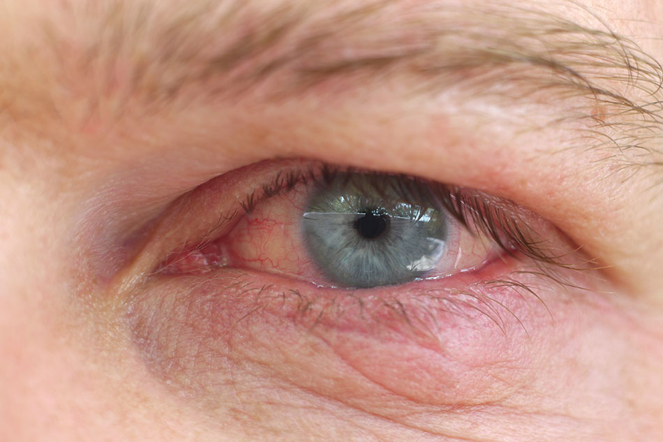 close up of man's eye with dry contact lenses