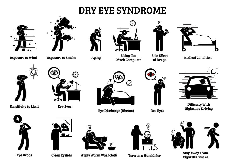 dry eye syndrome infographic