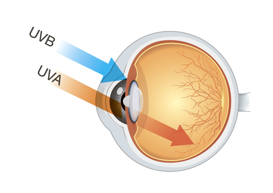 Diagram of eye showing UVB and UVA rays.