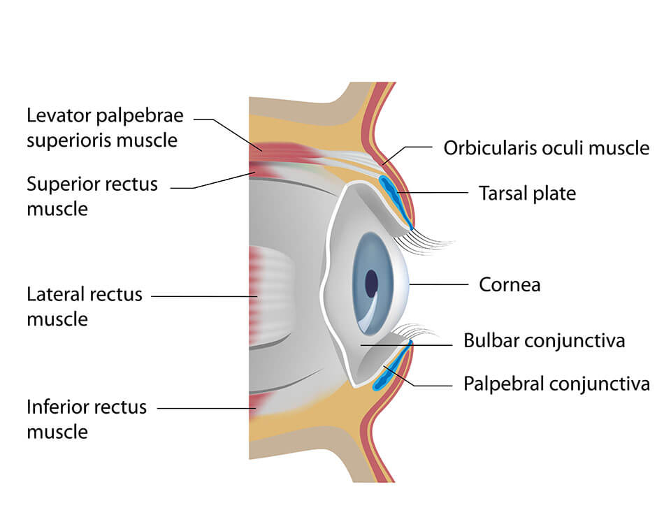 Can A Contact Get Stuck In Your Eye 6 Emergency Tipscheap Contact