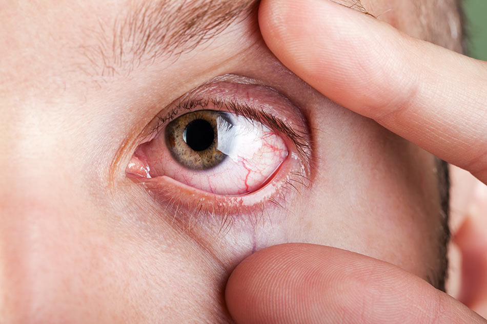 Fingers holding eyelids open showing dry eyes
