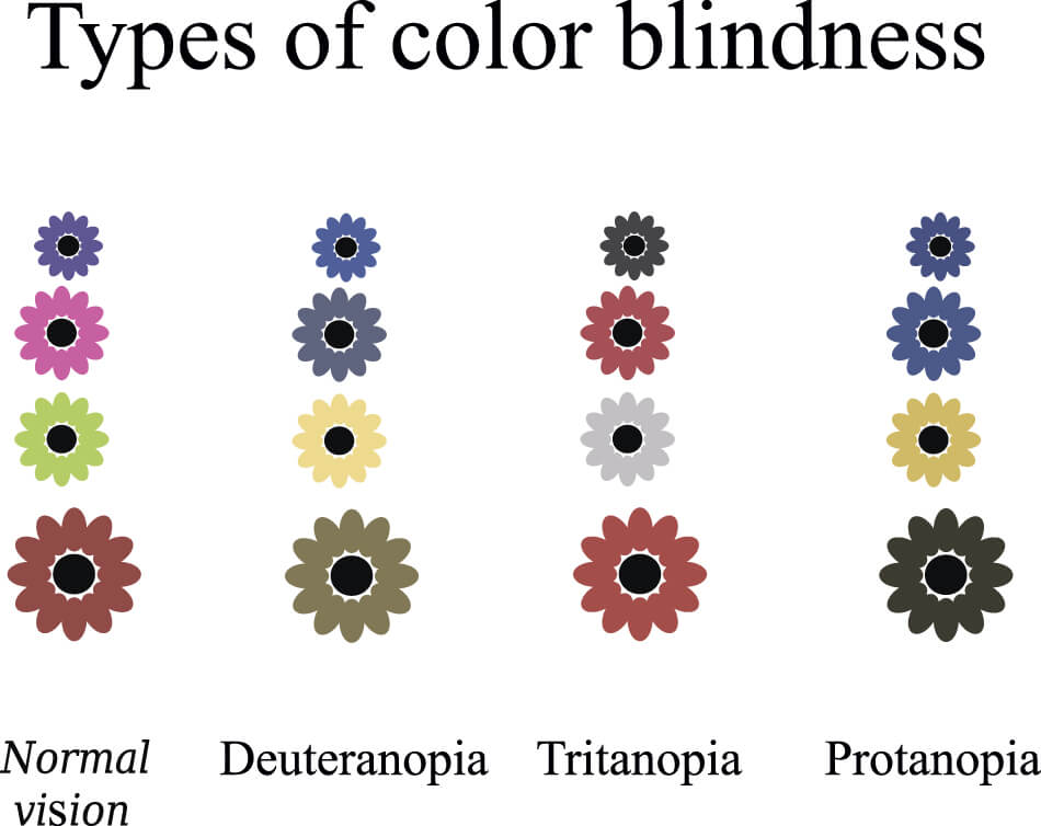 chart comparing colors seen by people with normal vision and colors seen by those with color blindness