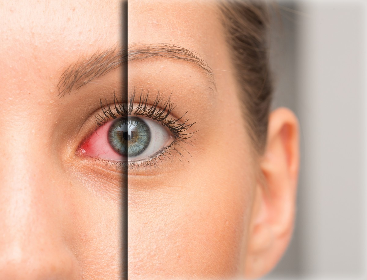 woman before and after split image of dry eye