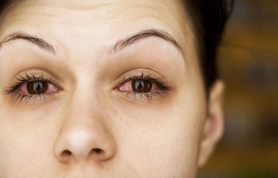 Woman with conjunctivitis